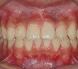 niềng răng mặt trong khớp răng sâu cười hở lợi 2