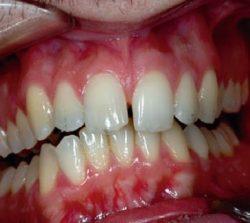 niềng răng mặt trong khớp răng khấp khểnh 1
