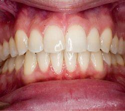 niềng răng mặt trong khớp răng khấp khểnh 2