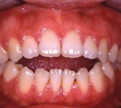 niềng răng mặt trong khớp hở hàm 1