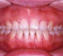 niềng răng mặt trong khớp hở hàm 2