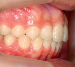 niềng răng mặt trong 2