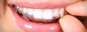 essix niềng răng chỉnh nha mặt lưỡi hà nội