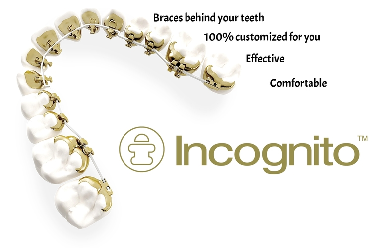 SPECIALISTS+IN+ORTHODONTICS+Incognito+hidden+braces+upper+arch