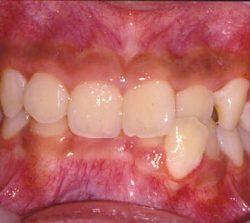niềng răng mặt trong khớp răng sâu cười hở lợi 1