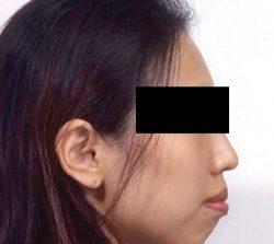 niềng răng mặt trong vẩu răng hai hàm 1