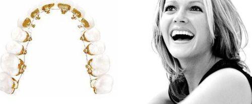 niềng răng mắc cài mặt lưỡi tại hà nội có nguy hiểm không
