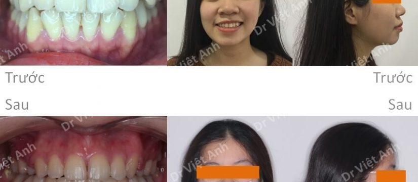 chỉnh nha hô hàm