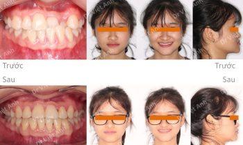 Niềng răng móm hoàn tất sau 10 tháng, không nhổ răng