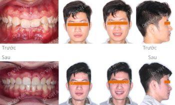niềng răng chỉnh nha hô