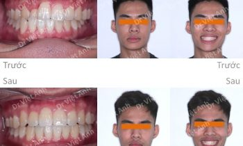 Chỉnh nha mặt trong khắc phục tình trạng lệch mặt, khớp cắn ngược