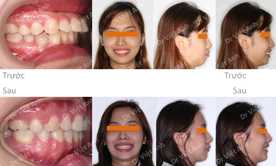 Niềng răng mặt trong hàm trên, khắc phục tình trạng hô và cằm lẹm