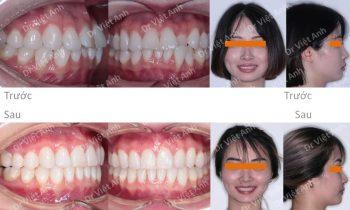 Chỉnh nha mặt lưỡi một ca răng lộn xộn, hô nhẹ nhỉ trong 10 tháng