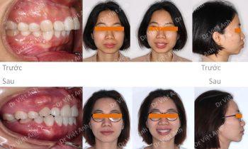 Chỉnh nha mặt trong điều trị thành công một ca hô hàm