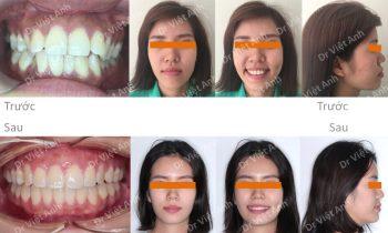 Chỉnh nha hô, lộn xộn, hàm hẹp thành công bằng mắc cài mặt lưỡi, không nhổ răng